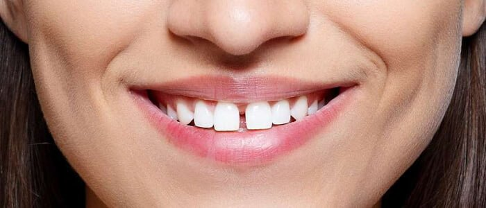 Front_Teeth