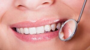 What To Do If You Are Not A Candidate For Teeth Whitening Dr